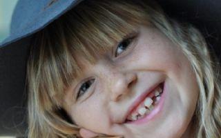 Как побороть боязнь стоматологов